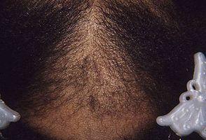 ¿Qué alimentos hace crecer el pelo?