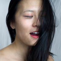 Tratamiento de la piel asiática de hiperpigmentación