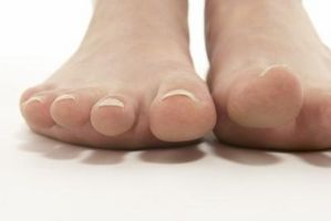 Cómo hacer un masaje en los pies para eliminar la piel muerta