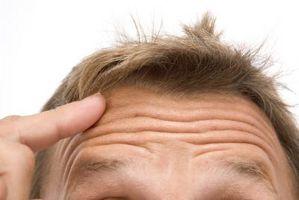 Cómo tratar las espinillas en el cuero cabelludo
