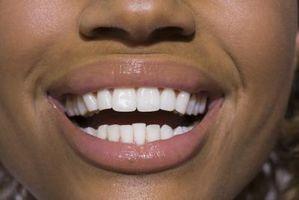 Cómo quitar las arrugas del labio Naturalmente