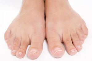 Formas de eliminar los callos y juanetes en los dedos de los pies