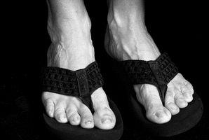 Tratamientos naturales para los pies apestosos