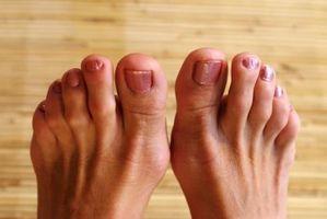 Cómo quitar un padrastro en un dedo del pie