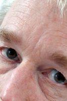 Remedio para las bolsas bajo los ojos