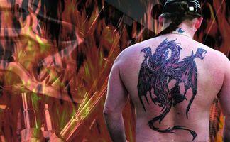 La eliminación de tatuajes Variot