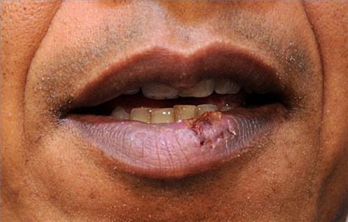 Cómo utilizar antivirales Cremas para el herpes labial