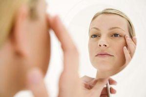 Los mejores productos del acné para la piel sensible