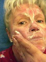 ¿Cómo uso Dermarest como un tratamiento para la rosácea?