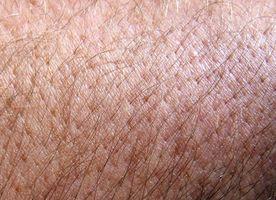 ¿Cómo deshacerse de las cicatrices del pelo encarnadas