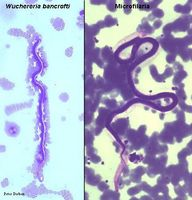 Ciclo de Vida Microfilaria