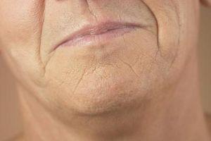 Cómo borrar las arrugas con Retinol