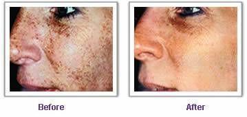 ¿Cómo funciona la depilación láser peca?