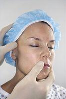 Cómo eliminar tumores de la piel con peelings químicos