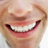 Will cremor tártaro blanquear los dientes?