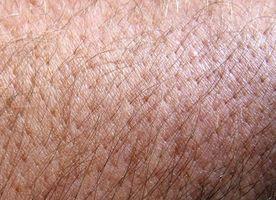 ¿Qué es la piel y el pelo de la psoriasis?