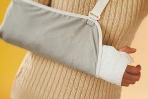 Cómo viajar en un yeso de brazo