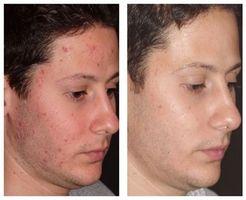 Cómo prevenir las erupciones de la piel y mejorar su
