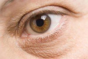 Cómo hacer sus ojos más hermosos: La reducción de bolsas y ojeras